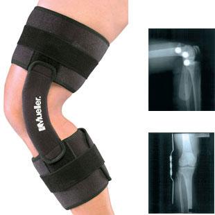 Код 2100 Шарнирный бандаж на колено, безразмерный, 1 шт., черный